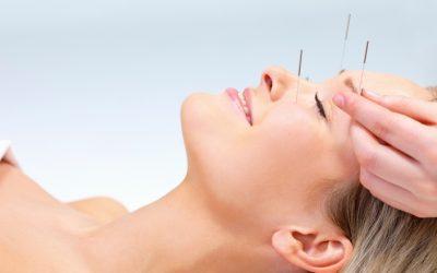 ¿Quieres saber más sobre acupuntura estética?