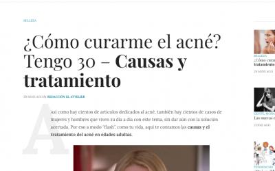 ¿Cómo curarme el acné? Tengo 30 – Causas y tratamiento | El Attelier