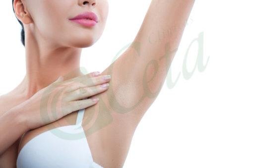 clinicas-ceta-axilas-mujer